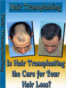 Is Hair Transplanting the Cure for Your Hair Loss?