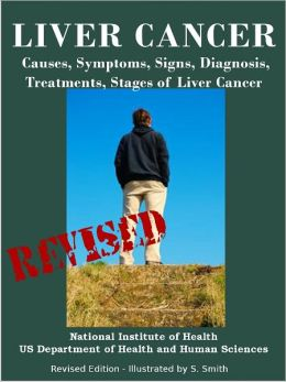 LIVER CANCER: Causes, Symptoms, Signs, Diagnosis, Treatments, Stages of Liver Cancer - Revised Edition - Illustrated by S. Smith