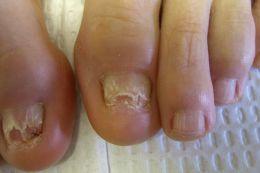 Infecciones: Los Síntomas, Causas, Cura Hongos en Las Uñas