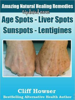 Amazing Natural Healing Remedies - Age Spots - Liver Spots - Sunspots - Lentigines