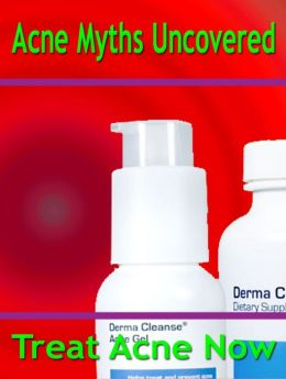Acne Myths Uncovered