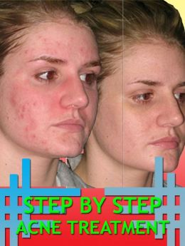 Step By Step Acne Treatment