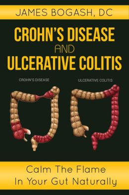 Crohn's Disease and Ulcerative Colitis: Calm the Flame in Your Gut Naturally