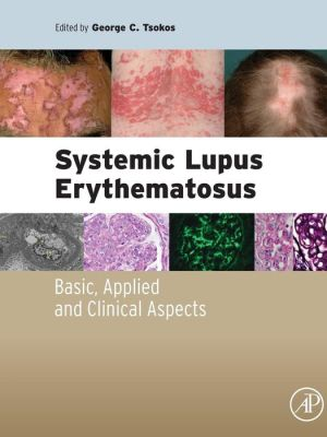 Systemic Lupus Erythematosus: Basic, Applied and Clinical Aspects