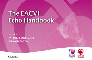 The EACVI Echo Handbook