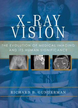 X-Ray Vision: The Evolution of Medical Imaging and Its Human Implications