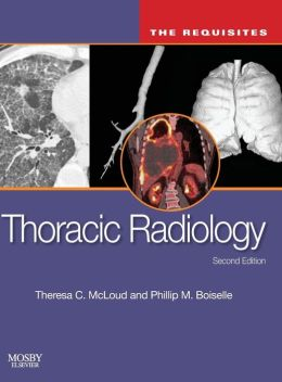 Thoracic Radiology: The Requisites