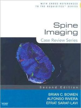 Spine Imaging: Case Review Series