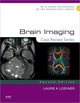 Brain Imaging: Case Review Series