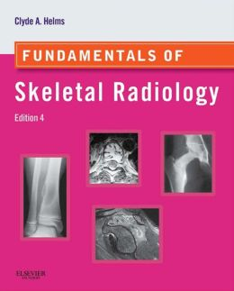 Fundamentals of Skeletal Radiology: Expert Consult: Online