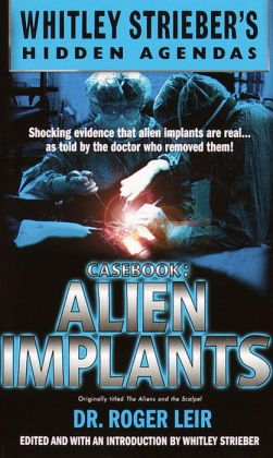 Casebook: Alien Implants