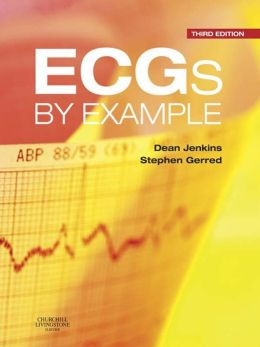 ECGs by Example
