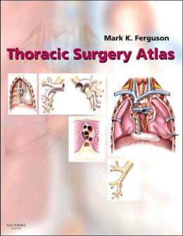 Thoracic Surgery Atlas