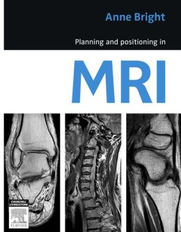 Planning and Positioning in MRI