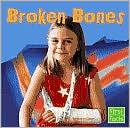 Broken Bones