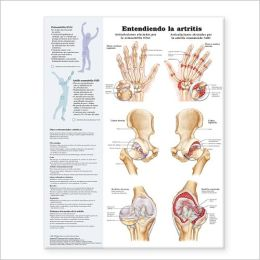 Understanding Arthritis Spanish: Entendiendo la artritis