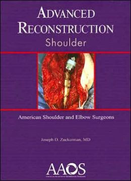 Advanced Reconstruction: Shoulder