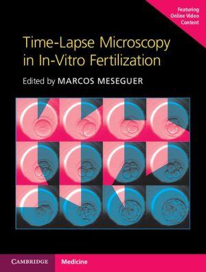 Time-Lapse Microscopy in In-Vitro Fertilization