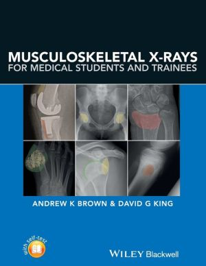 Musculoskeletal X-rays for Medical Students