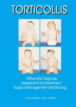Torticollis: Differential Diagnosis, Assessment and Treatment, Surgical Management and Bracing
