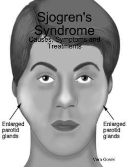 Sjogren's Syndrome: Causes, Symptoms and Treatments