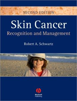 Skin Cancer: Recognition and Management