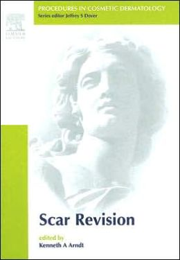 Procedures in Cosmetic Dermatology Series: Scar Revision