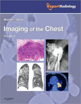 Imaging of the Chest, 2-Volume Set: Expert Radiology Series