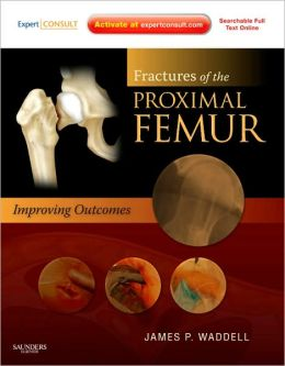 Fractures of the Proximal Femur: Improving Outcomes: Expert Consult: Online and Print