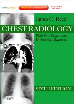 Chest Radiology: Plain Film Patterns and Differential Diagnoses, Expert Consult - Online and Print
