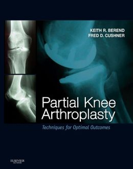 Partial Knee Arthroplasty: Techniques and Optimal Outcomes - Expert Consult