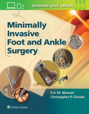 Minimally Invasive Foot & Ankle Surgery