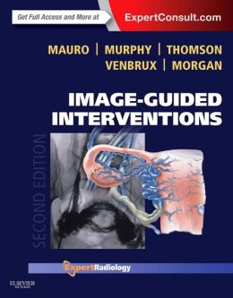 Image-Guided Interventions: Expert Radiology Series (Expert Consult - Online and Print)