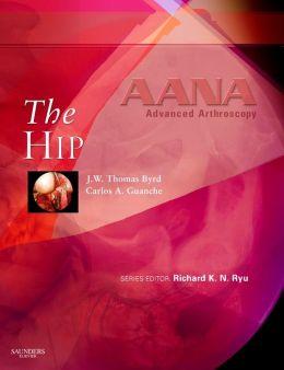 AANA Advanced Arthroscopy: The Hip