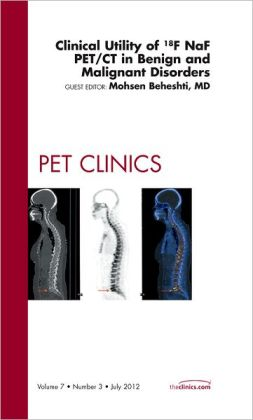 Clinical Utility of 18NaF PET/CT in Benign and Malignant Disorders, An Issue of PET Clinics