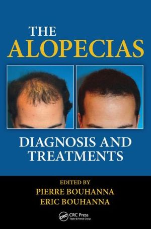 The Alopecias: Diagnosis and Treatments