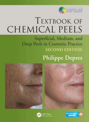 Textbook of Chemical Peels, Second Edition