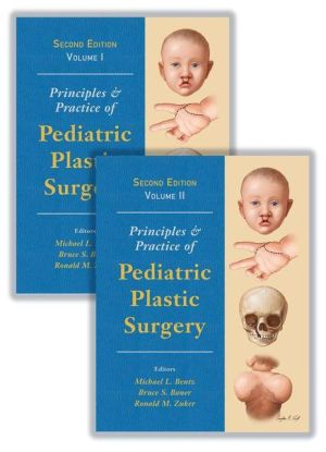 Principles and Practice of Pediatric Plastic Surgery, Second Edition - Two Volume Set