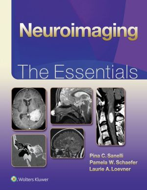Neuroimaging: The Essentials