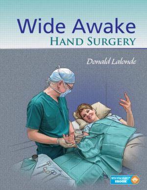 Wide Awake Hand Surgery
