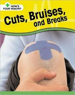 Cuts, Bruises, and Breaks