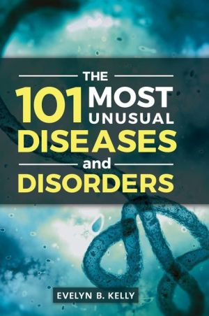 The 101 Most Unusual Diseases and Disorders