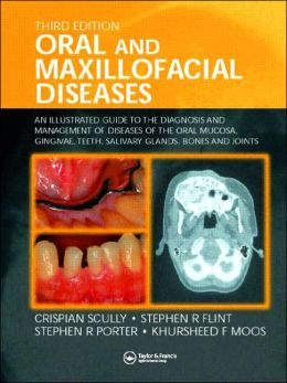 Oral and Maxillofacial Diseases: An Illustrated Guide to Diagnosis and Management of Diseases of the Oral Mucosa, Gingivae, Teeth, Salivary Glands, Bones, and Joints