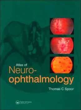 Atlas of Neuroophthalmology