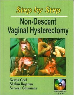 Step by Step Non-Descent Vaginal Hysterectomy