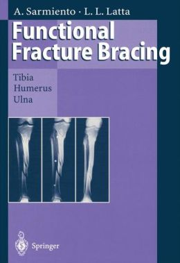 Functional Fracture Bracing: Tibia, Humerus, and Ulna