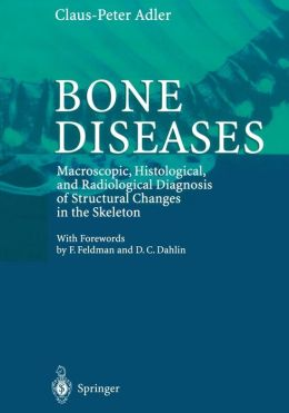 Bone Diseases: Macroscopic, Histological, and Radiological Diagnosis of Structural Changes in the Skeleton