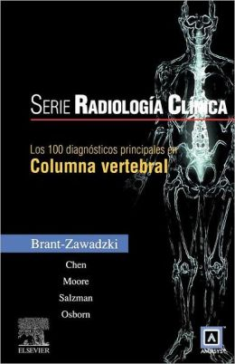 LOS 100 DIAGNOSTICOS PRINCIPALES EN COLUMNA VERTEBRAL