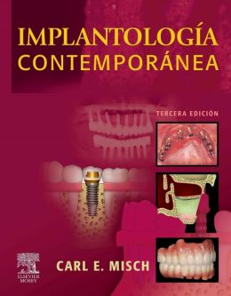 Implantología contemporánea