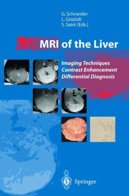 MRI of the Liver: Imaging Techniques, Contrast Enhancement, Differential Diagnosis
